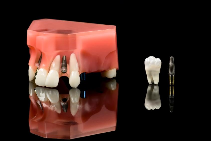 Human Wisdom tooth, Dental Titanium Implant and Plastic teeth mo